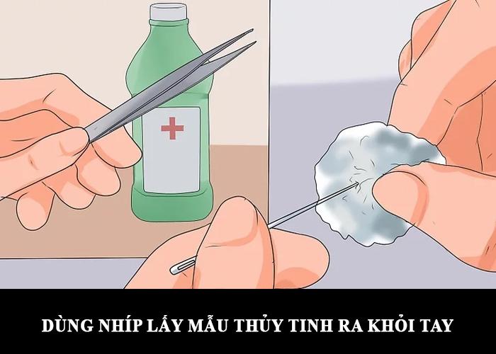 Rút sợi bông thủy tinh ra khỏi tay khi bông thủy tinh dính vào